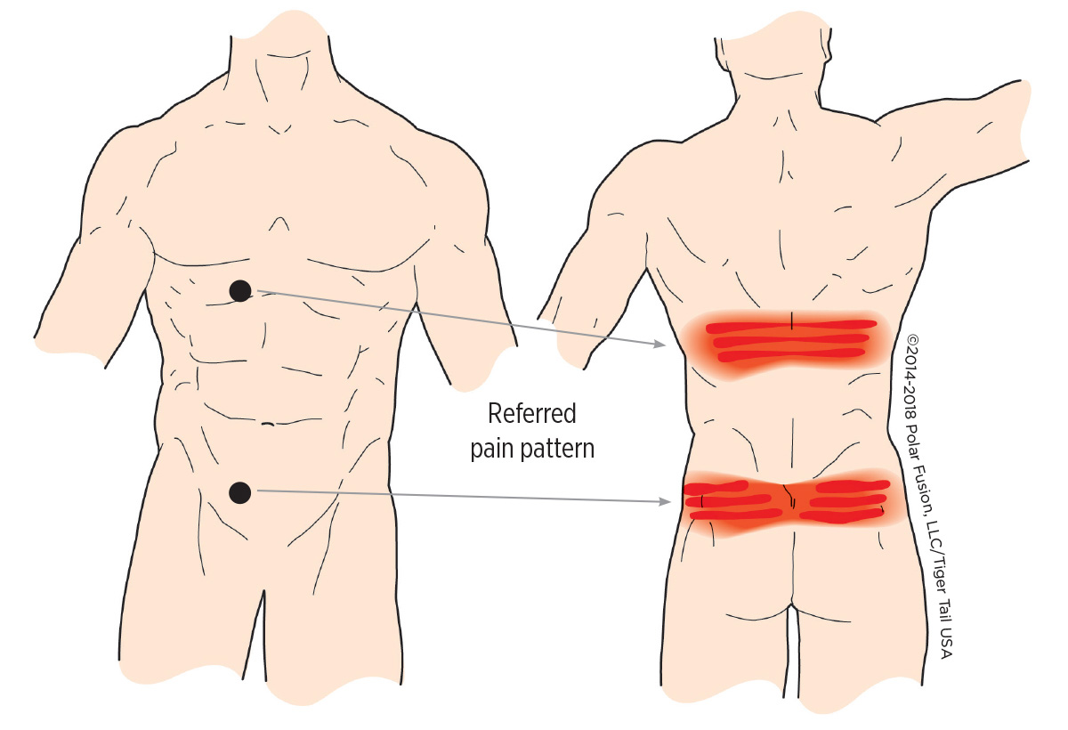 hight resolution of muscle knots in lower back