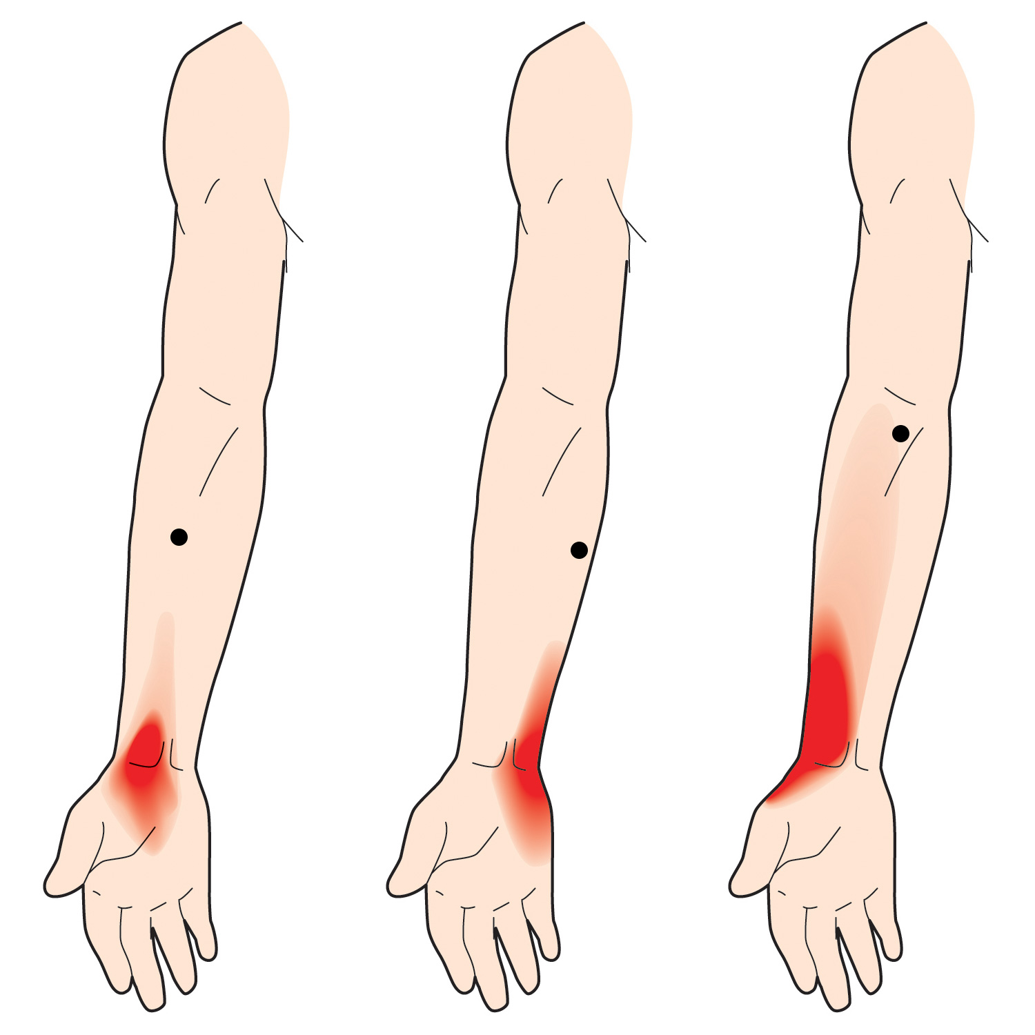 Pain from thumb to elbow