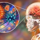 Apa Itu Meningitis, Penyebab, dan Gejala yang Muncul