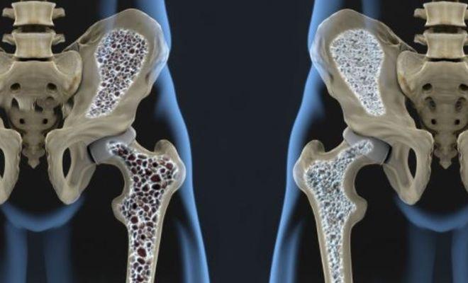 Kenali Gejala dan Cara Mencegah Osteoporosis
