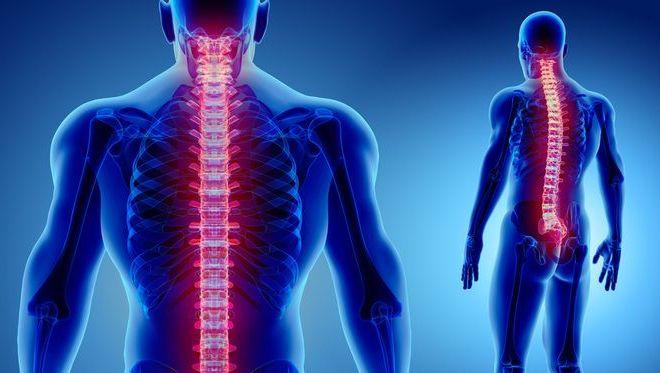 Cegah Osteoporosis, Ini Tips Jaga Kesehatan dan Kekuatan Tulang