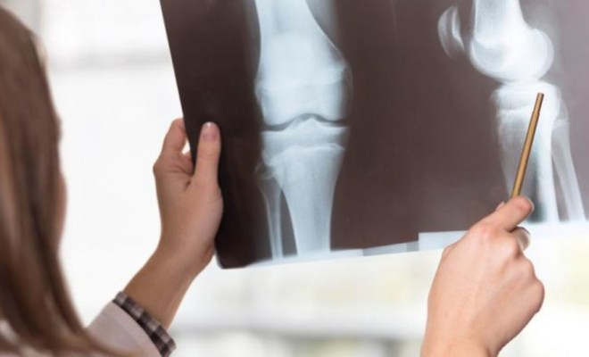 Cara Alami Tingkatkan Kepadatan Tulang