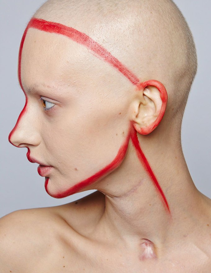 jaw-cancer-model-19