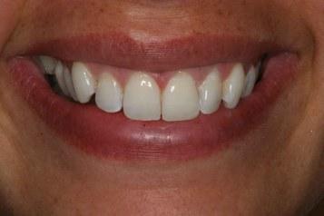 aldershot-dentist