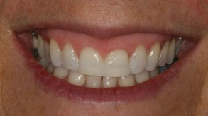 dentist-explains-orthodontics