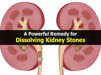 How to dissolve kidney stones in one day?