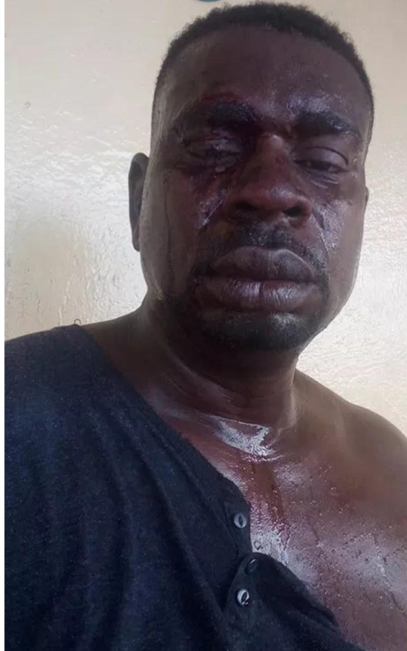 Baba fryo bleeding face .