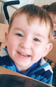 Finlay had open heart surgery as a baby. He is now a happy 2 year old.