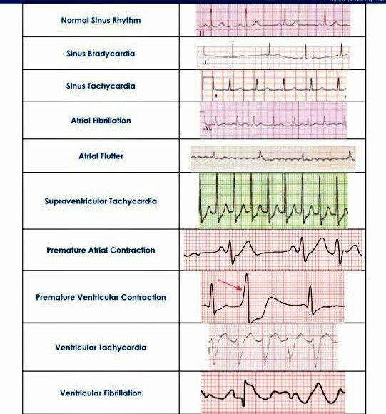 EKG Yorumları
