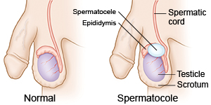 Spermatosel