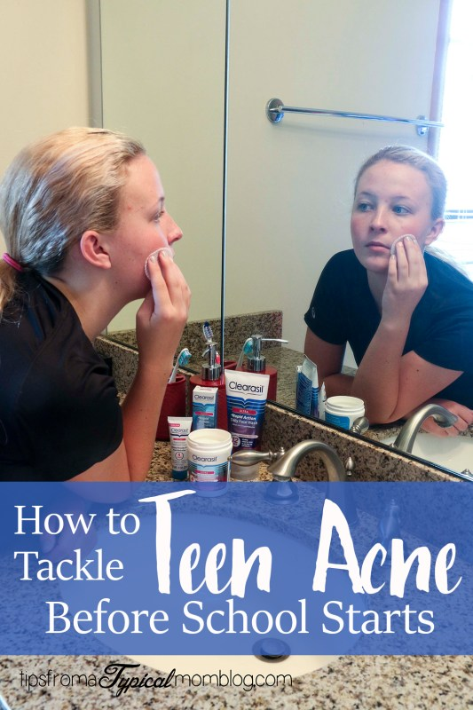 How to Tackle Teen Acne Before School Starts