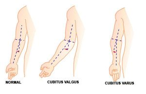 TitaniumGeek CUBITUS-300x194 Elbow Fracture Physiotherapy - Day 1