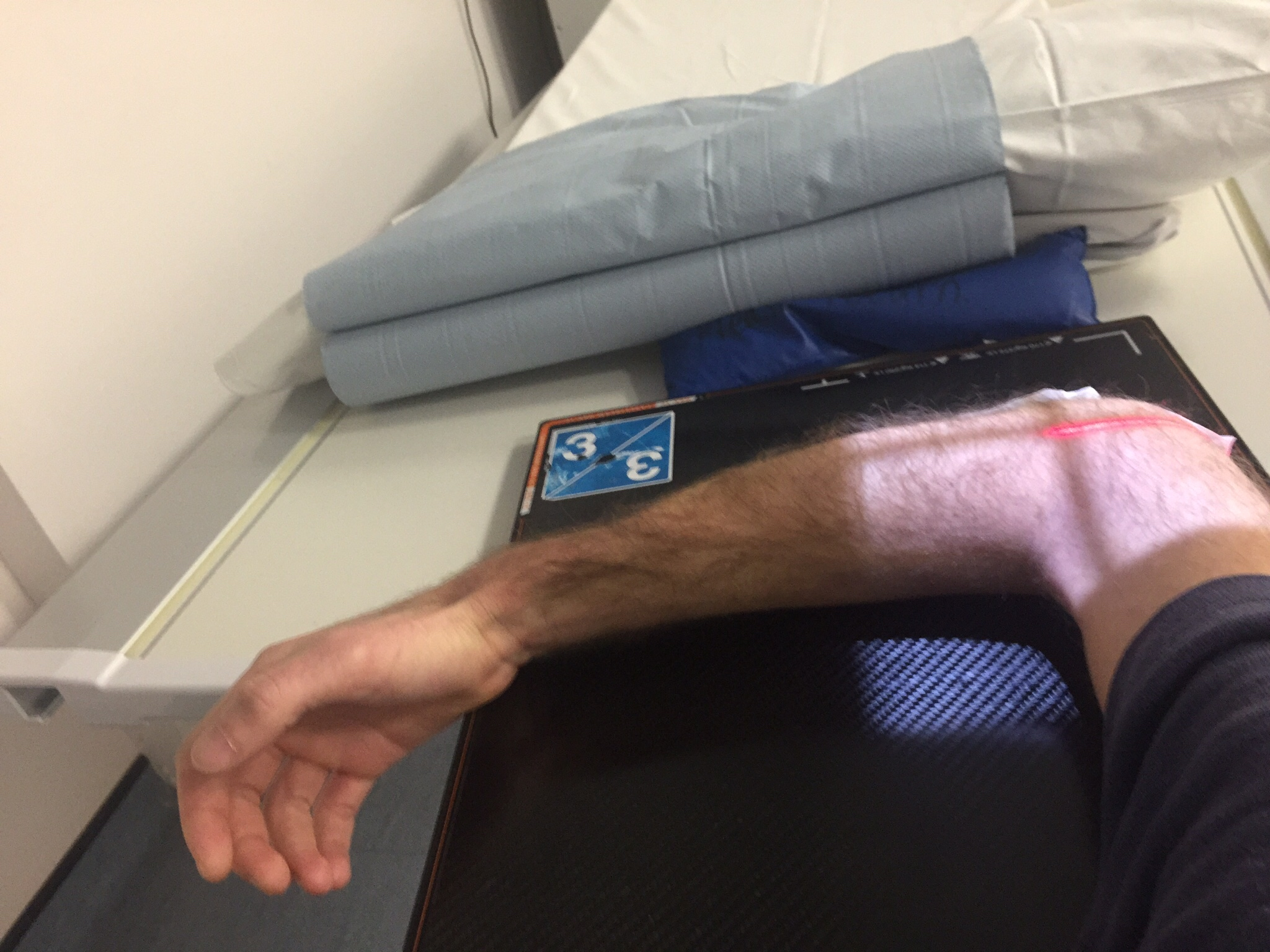 Fracture Cast Is OFF! - Broken elbow recovery - TitaniumGeek
