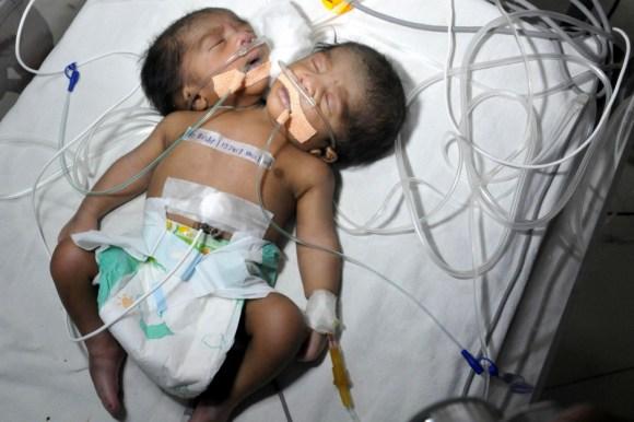 Un bébé à deux têtes en Inde