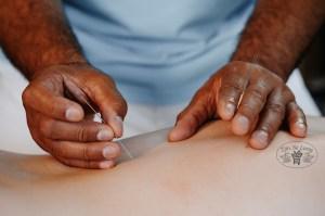 Tjin Se Lung Acupunctuur Haarlem