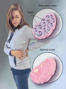 polycystic ovarian diseases include pcos, pcod, neer kattigal in karpa paitamil siddha medicine for pcos and symptoms