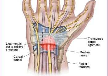 inside view of the wrist showing muscles and tendons