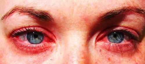 Alérgica