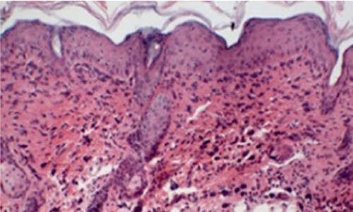 Piel de ratón inflamada y con eczema