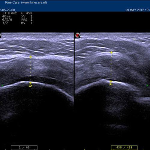 Muskuloskeletaler Ultraschall
