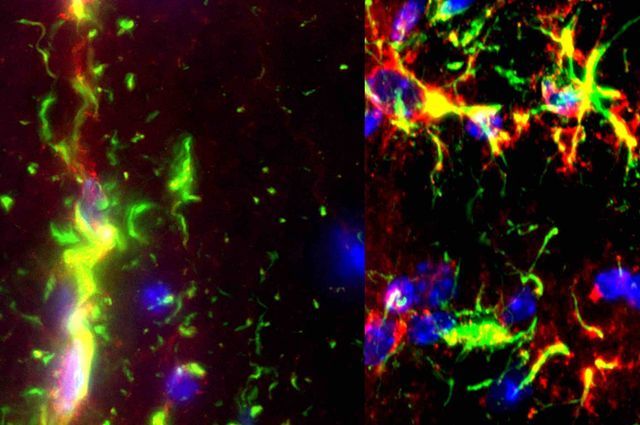 Researchers Find Potential Path Using Gene Expression to Repair Nerves damaged by MS