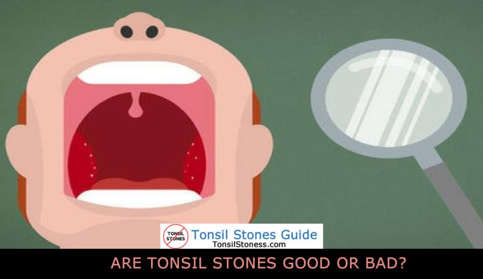 ARE TONSIL STONES GOOD OR BAD?
