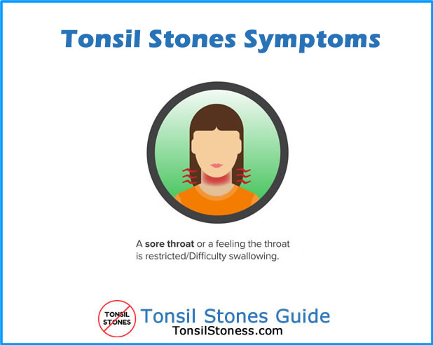 Tonsil Stones Symptoms Sore throat