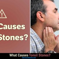 What causes tonsil stones? - Tonsil Stones Causes