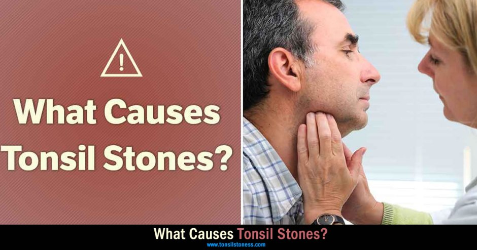 What Causes Tonsil Stones?