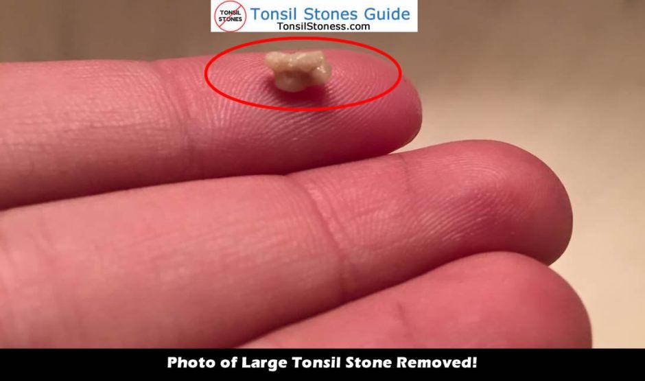 big tonsil stones