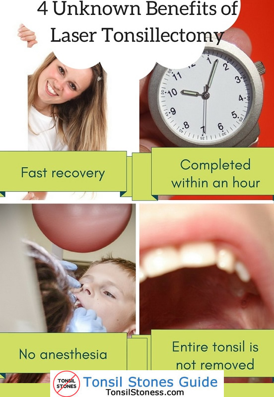 Benefits of Laser Tonsillectomy
