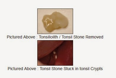 real tonsil stones images