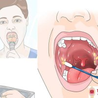 Waterpik for Tonsil Stones Removal Guide - Waterpik for Tonsil Stones