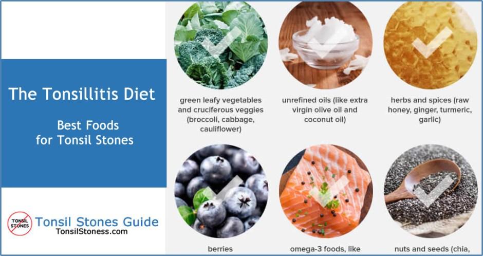 tonsil stones diet foods