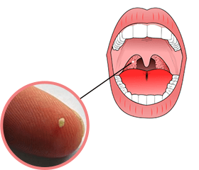 tonsil-stones image