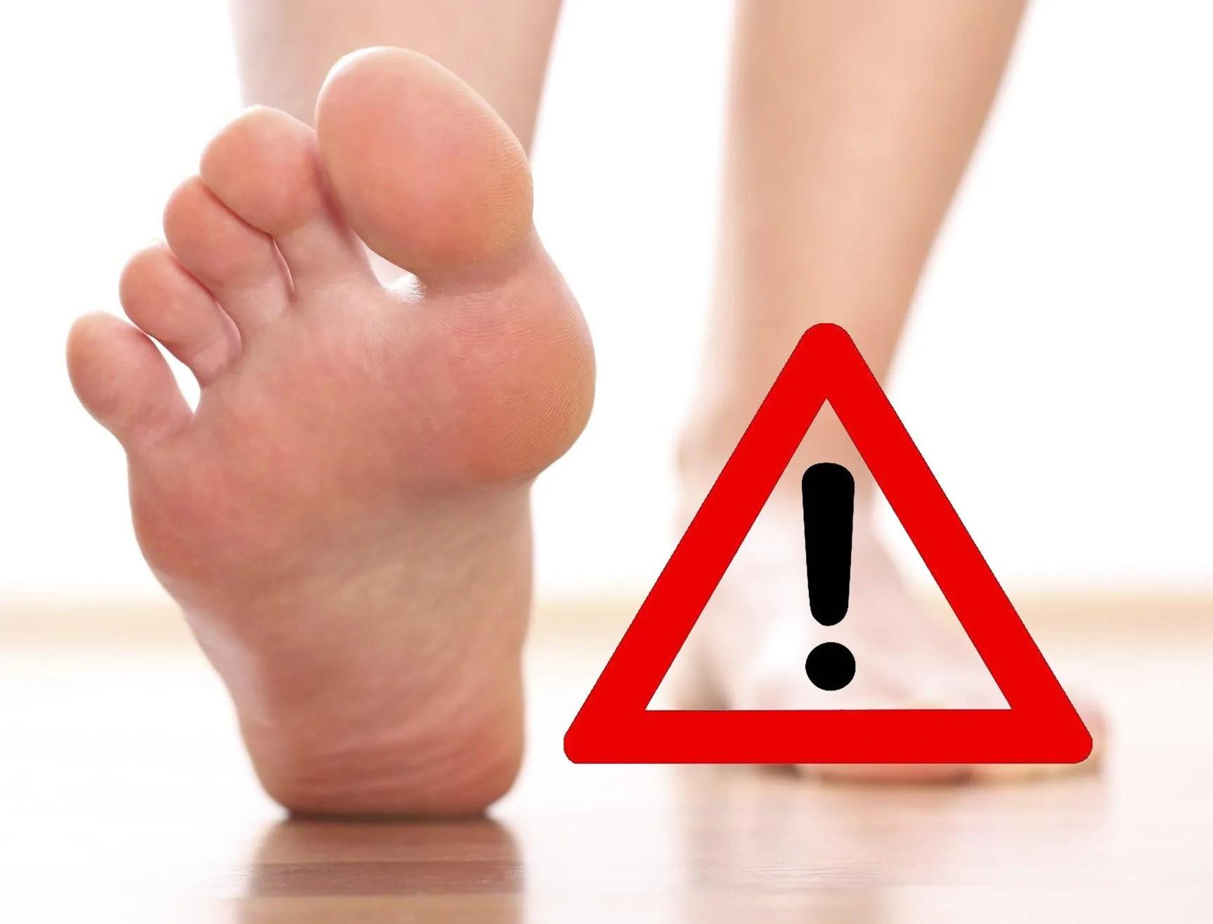 Il piede diabetico  1  Tonus