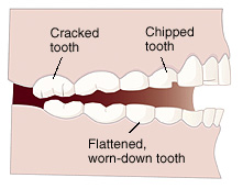bruxism effects