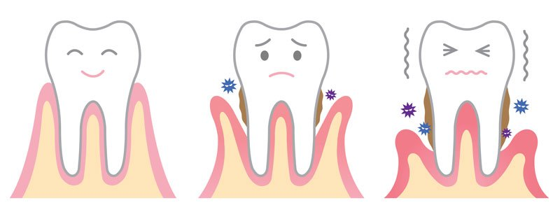 Dampak penyakit gusi- Global Estetik Dental Care