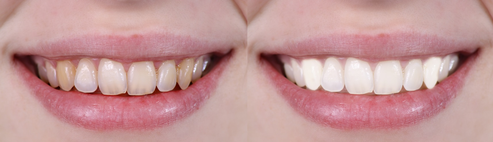 5 Common Mistakes That Can Cause Yellow Teeth - ToothStars