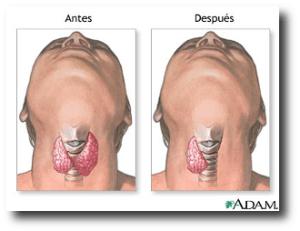 4. Cirugia de tiroides