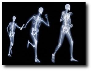 4. Fortalece los huesos