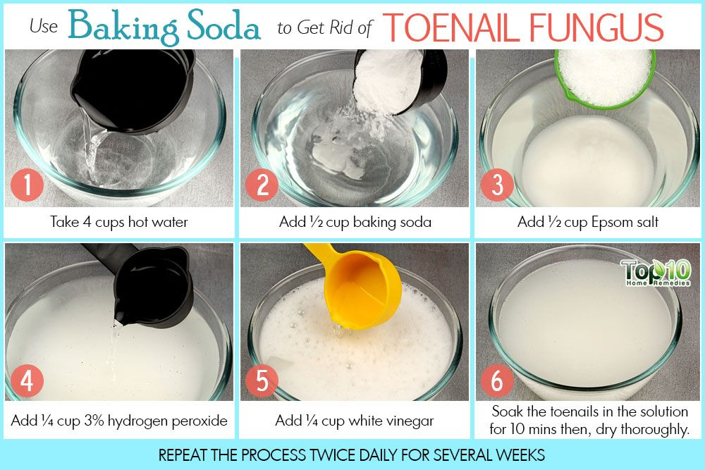 How To Get Rid Of Toenail Fungus Top 10 Home Remedies