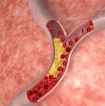 cholestrol in artery