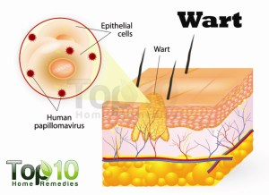 Home Remedies for Warts | Top 10 Home Remedies