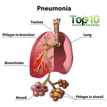 Pneumonia medical diagram