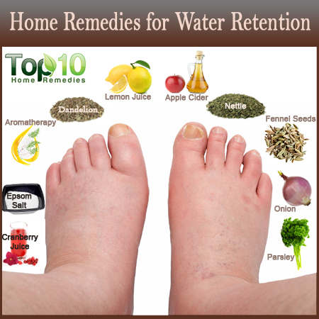 home remedies for water retention 1