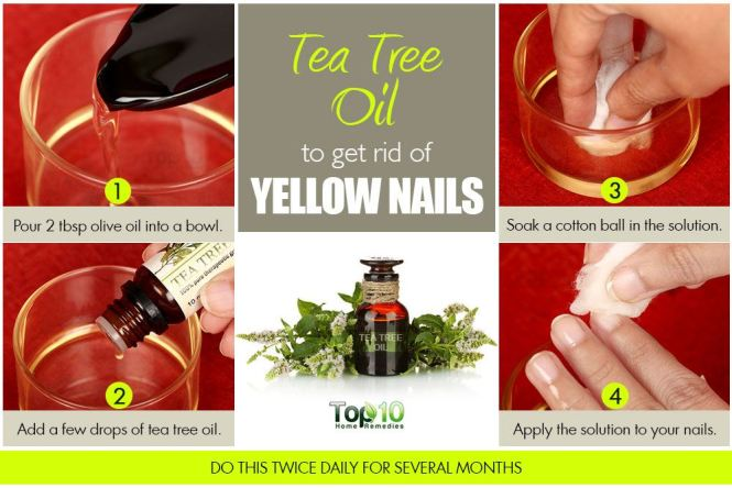Follow These Simple Steps To Get Rid Of Yellow Nails