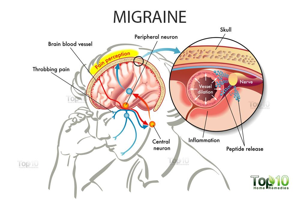 Image result for Migraines