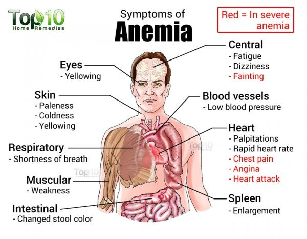 Recovering from Anemia with Home Remedies  Top 10 Home Remedies