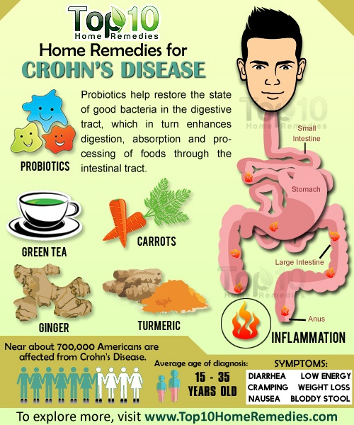Home Remedies for Crohn's Disease | Top 10 Home Remedies